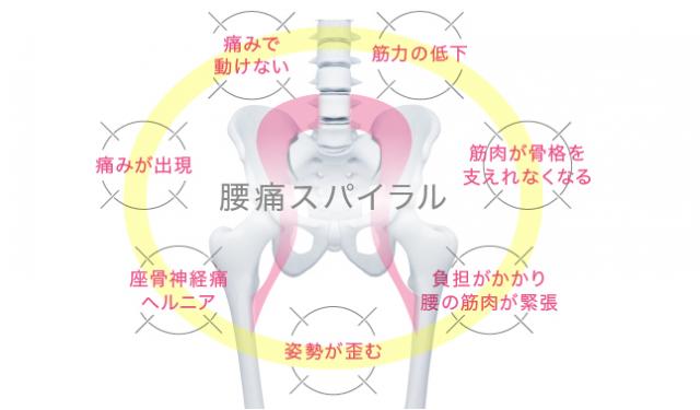 腰痛のスパイラル